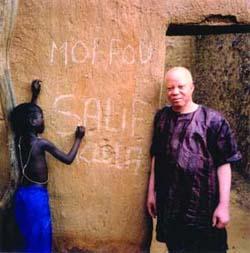 La Fondation Salif Keita pour les albinos du Mali