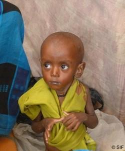 Dans le sud de la Somalie, 640 000 enfants souffrent de malnutrition dont 310 000 atteints de malnutirtion aigüe.