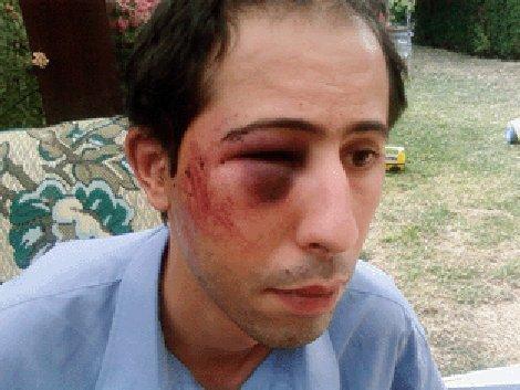 Nouredine Rachedi après son agression en août 2008.