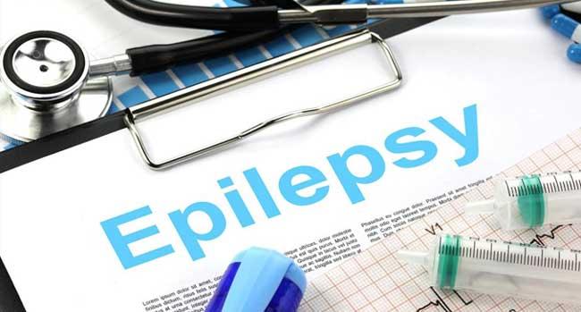 La médecine prophétique dévoilée : zoom sur un traitement « religieux » de l'épilepsie