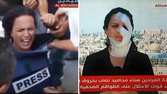 Blessée par une grenade israélienne, la journaliste fait le job (vidéo)