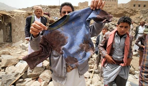 Yémen : la France appelée à cesser le « commerce macabre » de la vente d'armes