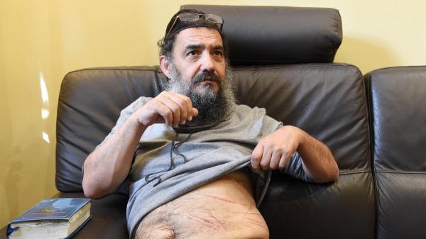 Tzion Saadoun exhibant des blessures qui lui auraient été infligées par des admirateurs de Merah et de Daesh.