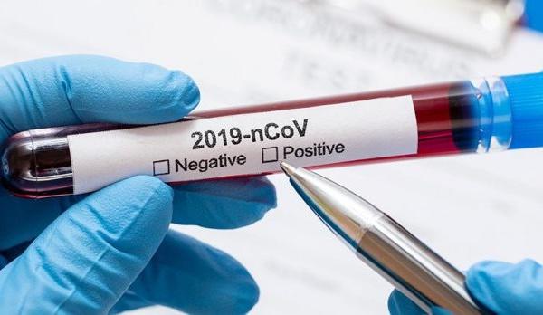 Diagnostiquer le Covid-19 : ce qu'il faut savoir sur les tests